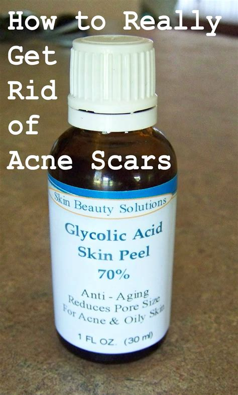 Glycolic Acid Peel At Home by Poppy Juice How To Really Get Rid Of Acne Scars