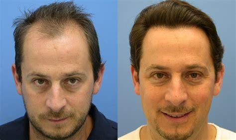 male hair transplant costs hair transplant causes symptoms treatment hair transplant