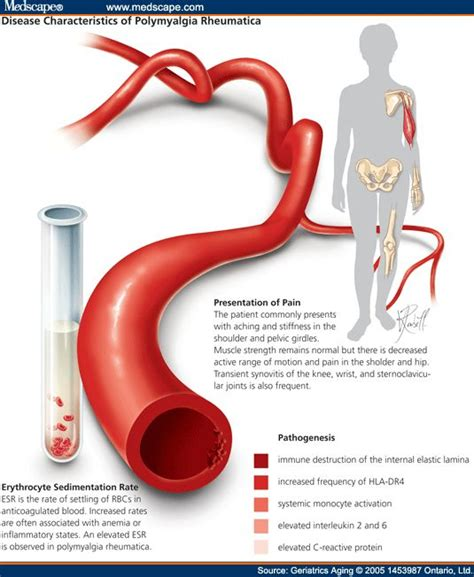 Pmr Detox by 123 Best Images About Cell Arteritis And Pmr On