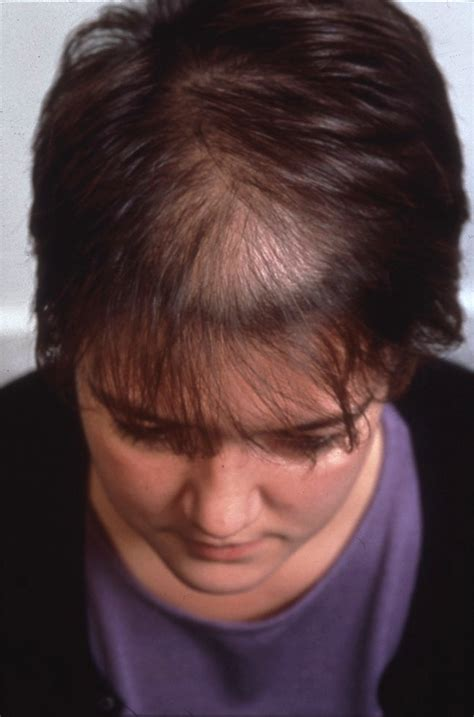 womans hair thinning on sides female hair loss symptoms causes treatment sussex