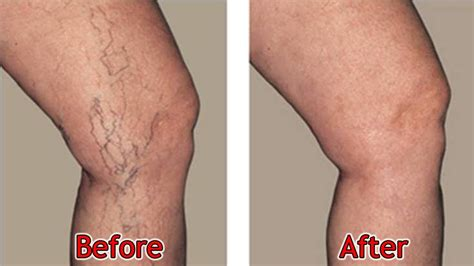 8 Symptoms Of Varicose Veins by Chronic Venous Insufficiency Vein Laser Center Of New