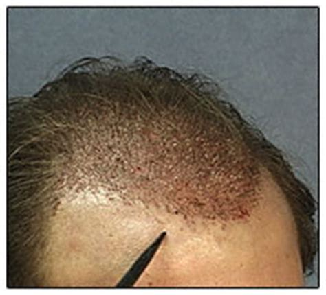 Hair Transplant Shedding by Quot Shock Loss Quot And After Hair Transplant