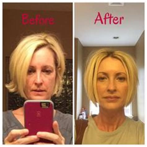 Botox Detox And Recovery Guide by 1000 Images About Botox On Black
