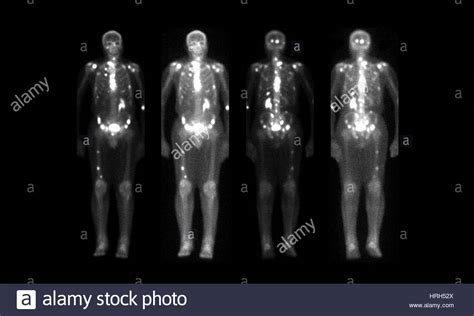 nuclear medicine bone scan stock photo royalty  image