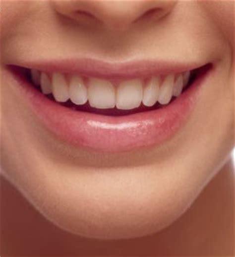 Biaya Pemutihan Gigi Di Jakarta prosedur pemasangan dental implant audy dental