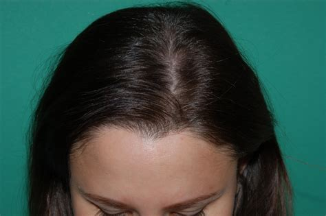 hair loss behind the ears in women women s hair loss chicago gold coast milwaukee
