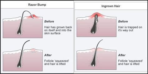 types of unusual ingrown hairs does hair wax have side effects quora