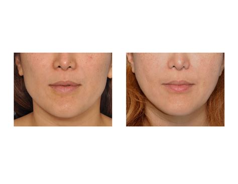 angular jaw line jaw angle reduction archives