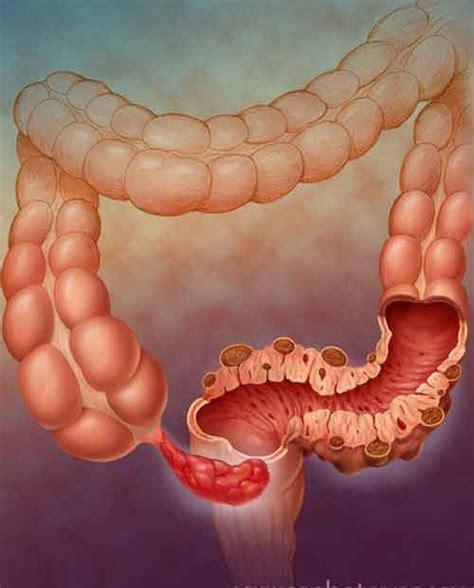 alimentazione appendice infiammata appendicite antibiotici possono sostituire la canonica