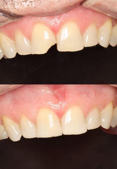 premier dental care solutions dumaguete philippines