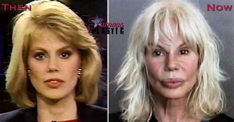 plastic surgery gone wrong bree walker in denial over bad plastic surgery