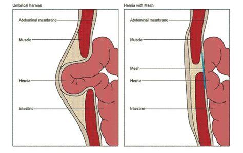 umbilical hernia repair images  pinterest exercises health  umbilical hernia