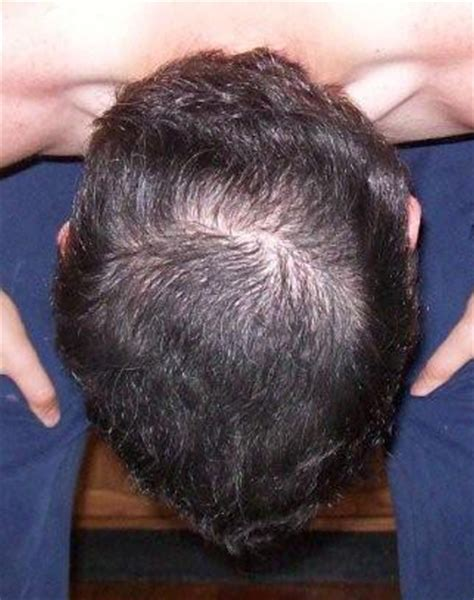crown balding balding on the crown with long hair how to stop hair
