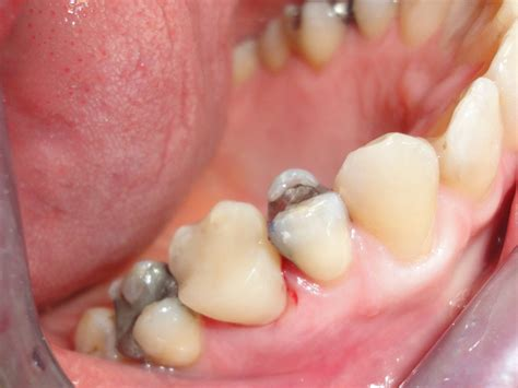 white fillings stoke road dental practice
