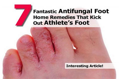 7 fantastic antifungal foot home remedies that kick out