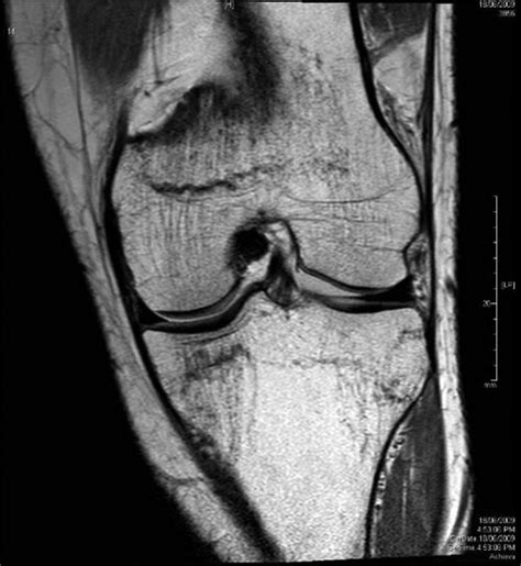 Proton Density Weighted Mri by Left Knee Coronal Proton Density Weighted Magnetic
