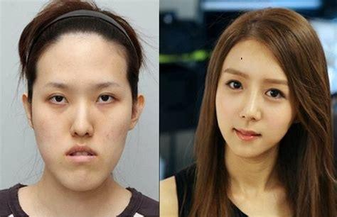 Wajah Rich korean plastic surgery part 2 damn cool pictures