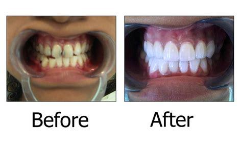phildar siege social dental crowns crown dental practice 100 images say