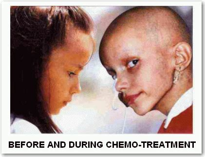 why are so many celebrities dying after chemotherapy no chemo treatment