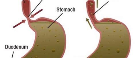 alimenti da evitare per il reflusso reflusso gastrico quali cibi evitare retehphitalia it