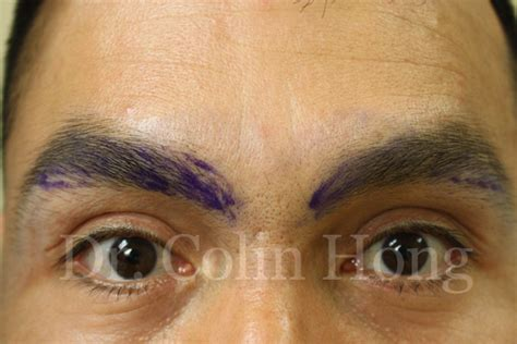 Eyelash Transplant Surgery Becames Popular 2 by Eyebrow Transplant Restoration Enhancement Eyelash