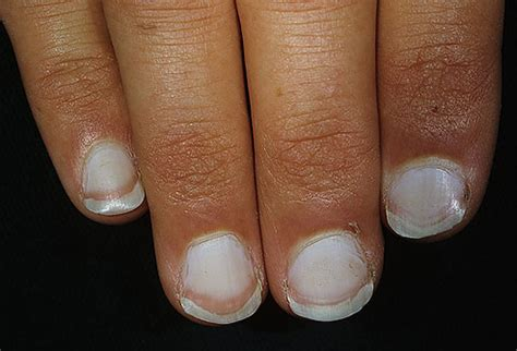 white fingernail beds nothing but everything your nails tell about your