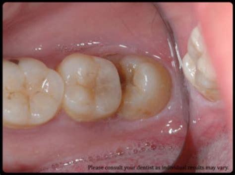wisdom teeth extraction wisdom teeth removal los angeles