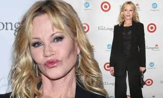 Melanie Griffith Looks Like Hell by Melanie Griffith Plumps Up At Charity Dinner