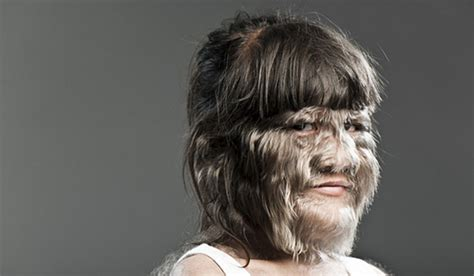 Hair Disease Types by Hypertrichosis Types Causes Symptoms Pictures