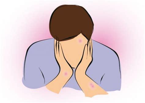 alimentazione per dermatite seborroica dermatite seborroica e alimentazione