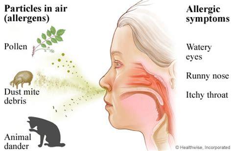 allergies symptoms allergic rhinitis