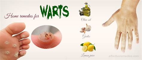 34 home remedies for warts on other