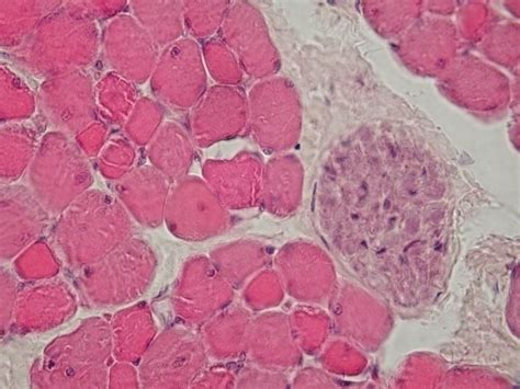 cross section of skeletal muscle pathology outlines skeletal muscle normal