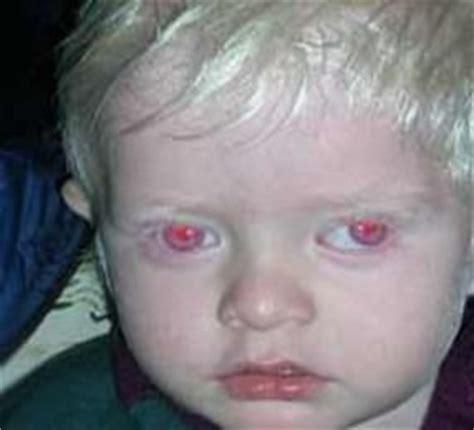 albino hairy pubic hair fuziah sulaiman blog perihal albinisme albino pada manusia