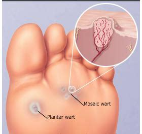 what does a planters wart look like the about plantar warts pa foot and ankle associates