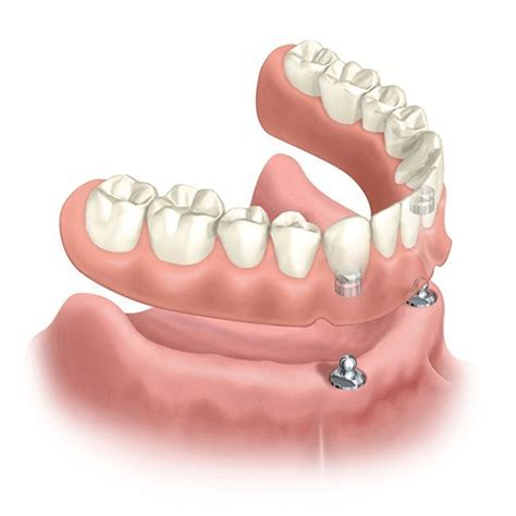 are implant supported dentures comfortable dentures toronto