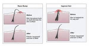 acceptable pubic hair length ingrown hairs proper removal of ingrown hairs good