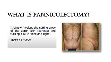 panniculectomy  drtim