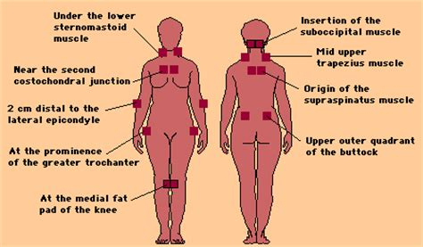 18 tender points of fibromyalgia diagram fibromyalgia tender points cropped gif images frompo