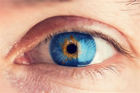 what determines eye color eye color determines risk for cancer