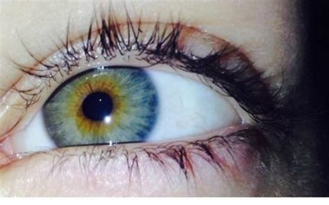what is my color what is my eye color what should i tell is my eye