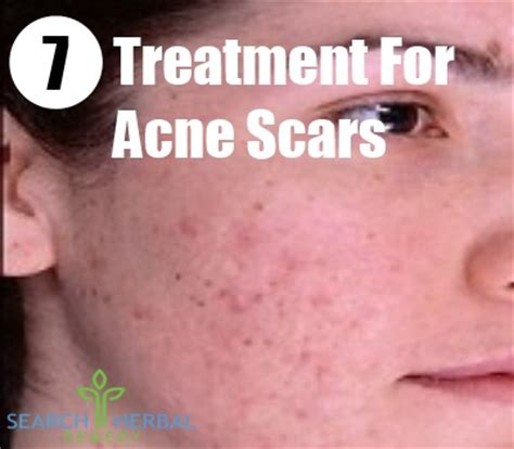 9 remedies for acne scars treatments cure for