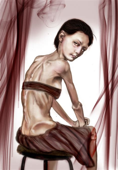 Is Anorexic by 18 Best Images About Anorexia Nervosa On Thank