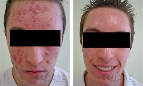 acne scars laser removal treatment before after pictures 7