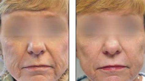laser tattoo removal nashville tn best 20 skin resurfacing ideas on
