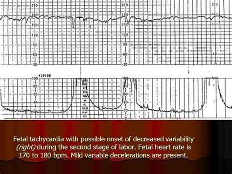 pattern of heart rate variability saltatory pattern with wide variability ppt download