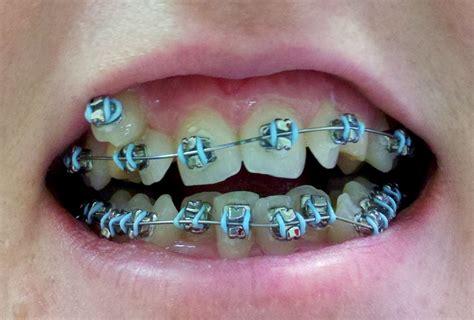 Bracket Behel Metal Sky Ortho teeth braces colors braces braces colors