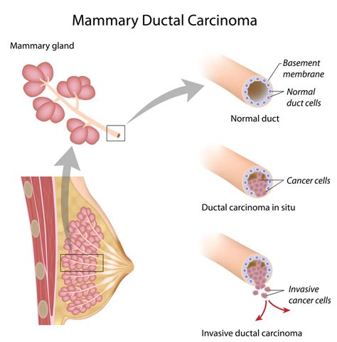 latest dcis breast cancer news and research dcis mystory kalimpong news test to detect breast cancer death low risk