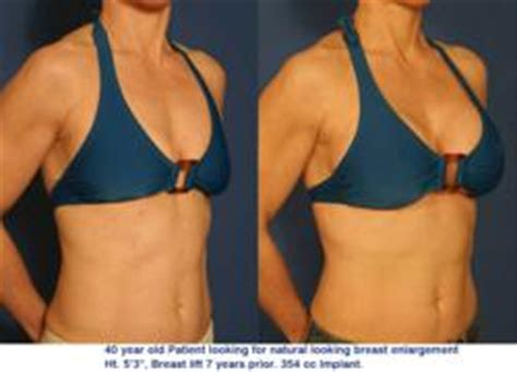 healthy fats for breast enlargement bednar cosmetic surgery of offers cell