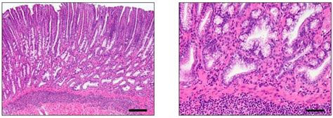 Cancers Free Full Text Mouse Models Of Gastric Cancer